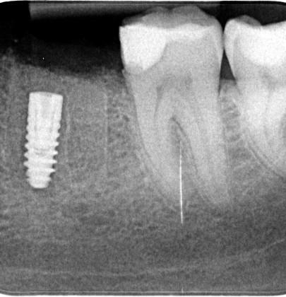imediátna implantácia ihneď po extrakcii zuba