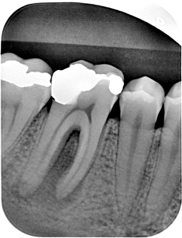 viditeľný chronický zápal v okolí koreňov zuba 46