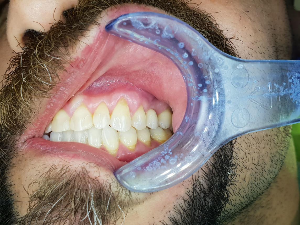 korunka nesená na implantáte v obl. zuba 25