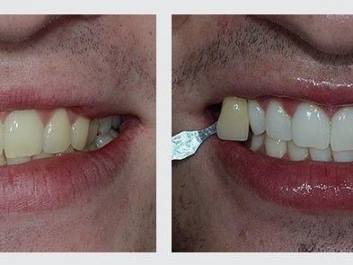 bielenie zubov systémom Pure Whitening